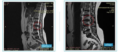 Patient Testimonial - Non surgical Neck Pain treatment in tamil nadu